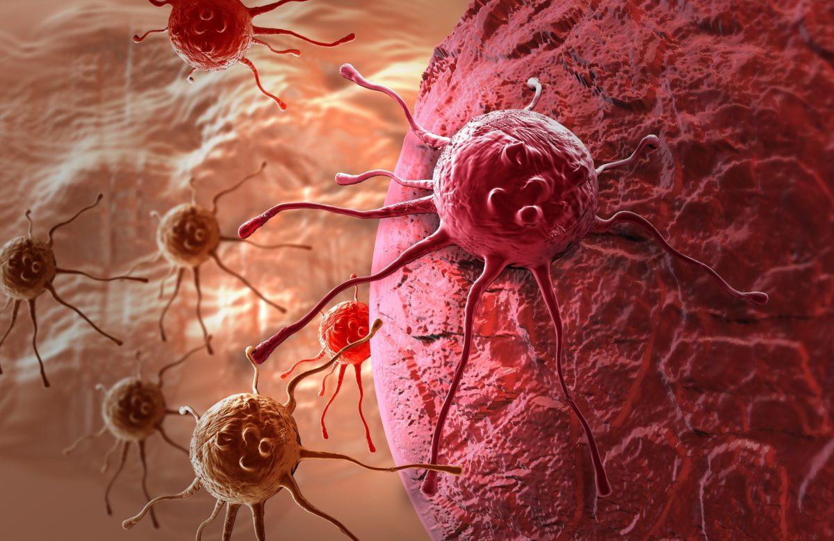 4 pravila koja smanjuju pojavu raka za 80 odsto