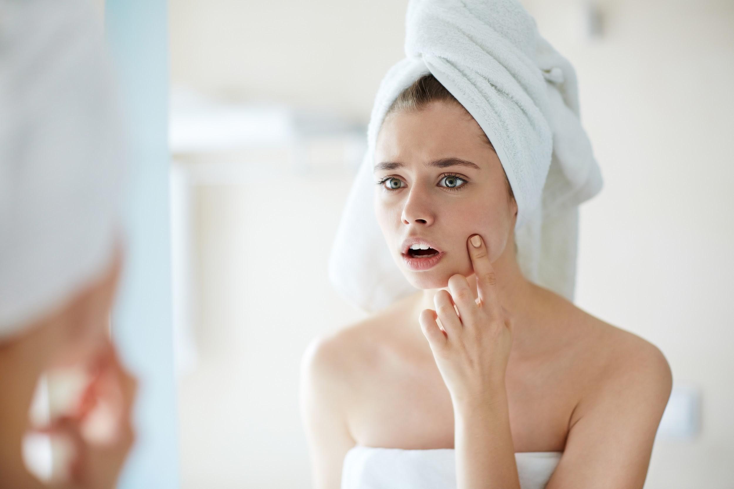 Čak 50 odsto žena se bori sa aknama