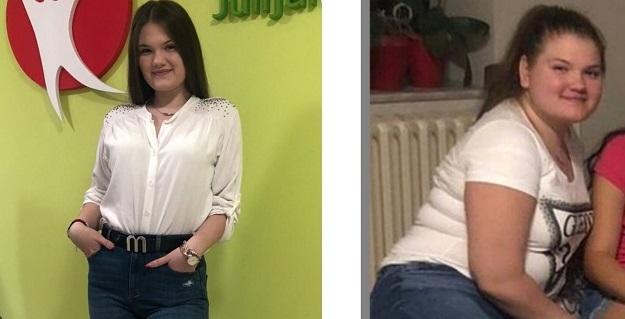 Gojaznost tinejdžera: Teodora smršala 19 kg za 4 meseca